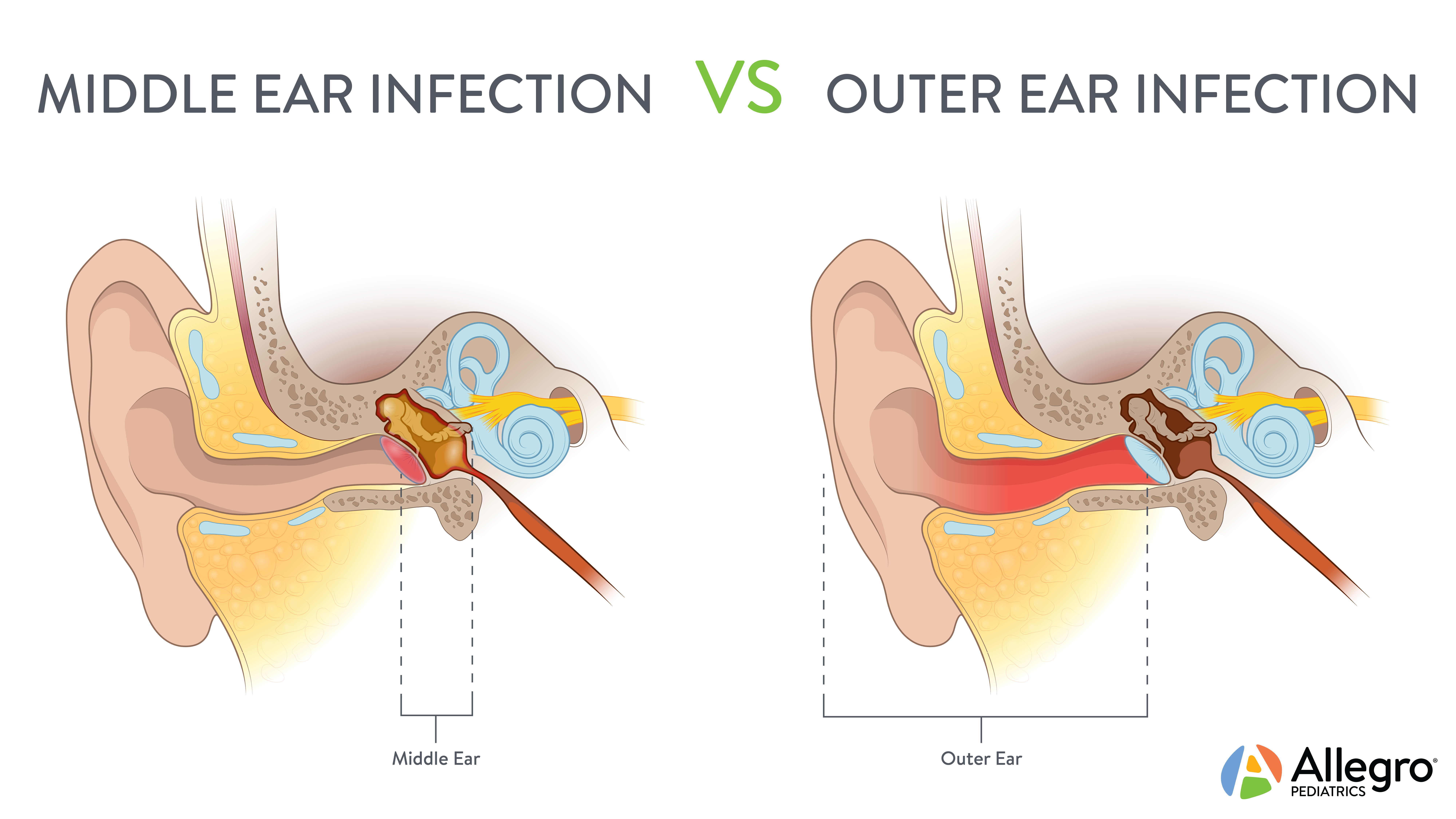 earinfection_middlevsouter_logo.jpg